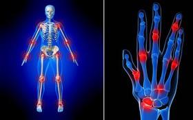 Thuốc giảm đau viêm khớp dạng thấp và một số lưu ý