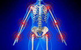 Tìm hiểu về hội chứng ống cổ tay- Một biến chứng thần kinh của bệnh viêm khớp dạng thấp