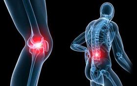 Quản lý cơn đau cho bệnh nhân đa u tủy xương