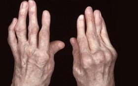Triển vọng phục hồi của người bị viêm khớp dạng thấp