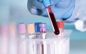 3 bước trong quy trình chẩn đoán ung thư máu