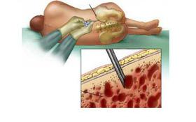 Chọc hút và sinh thiết tủy xương trong chẩn đoán ung thư máu