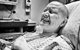 Những lưu ý cần nhớ khi giảm đau do ung thư thực quản