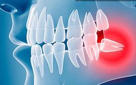 Nhận biết triệu chứng mọc răng khôn và cách xử trí