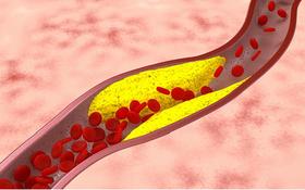 Xơ vữa động mạch vành là gì? Có nguy hiểm không? Từ A - Z về xơ vữa động mạch vành