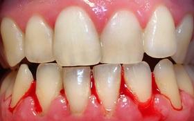 Chảy máu chân răng: Nguyên nhân, dấu hiệu và cách phòng ngừa
