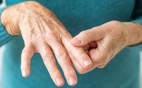Tổng quan về bệnh viêm khớp
