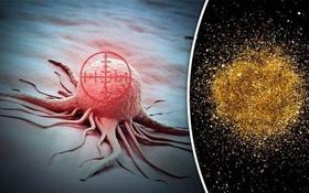 Công nghệ Nano- kỷ nguyên mới y dược học hiện đại, giải pháp mới cho điều trị ung thư