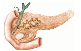 Viêm tụy mãn tính là gì? Những điều cần biết về bệnh viêm tụy mãn tính
