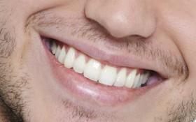 Chăm sóc răng miệng cho nam giới đúng cách
