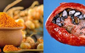 Nếu không ăn nghệ đúng cách, bạn có nguy cơ đối mặt với hàng loạt căn bệnh nguy hiểm