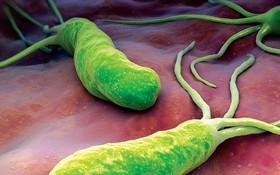 Mối liên hệ giữa vi khuẩn HP và ung thư dạ dày