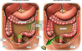 Phương pháp điều trị ung thư trực tràng giai đoạn 2