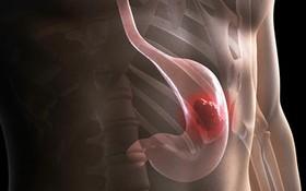 Ung thư dạ dày sống được bao lâu? Tiên lượng sống của bệnh ung thư dạ dày