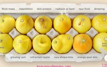 Phát hiện ung thư vú nhờ bức ảnh 12 quả chanh