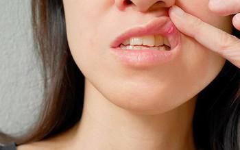 Cơn đau miệng trong ung thư đầu cổ có nguồn gốc từ đâu?