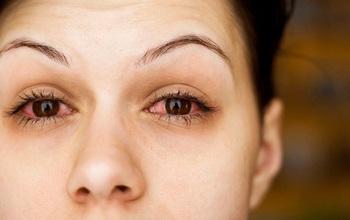 Các vấn đề nhiễm trùng mắt thường gặp trong mùa mưa cần biết
