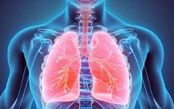 Tràn khí màng phổi: Từ A đến Z về tình trạng tràn dịch màng phổi mà bạn cần biết