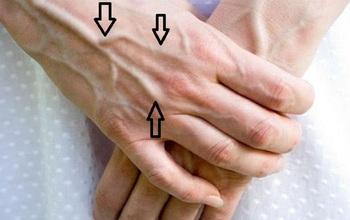 Nổi gân xanh trên cơ thể: Khi nào là hiện tượng tự nhiên, khi nào là do yếu tố sức khỏe?