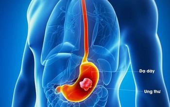 Ung thư dạ dày – Phát hiện sớm bằng cách nào?