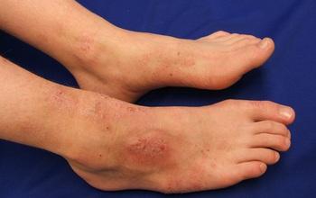 Các dạng viêm nhiễm da ở chân trong mùa mưa và cách phòng tránh