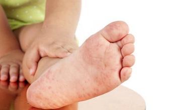 Bệnh tay chân miệng cấp độ 1 ở trẻ nhỏ: Biểu hiện, điều trị và phòng tránh