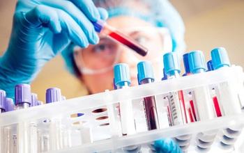 Cách phân biệt bệnh sốt xuất huyết với Covid-19