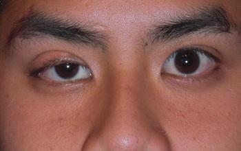 Xuất hiện dấu hiệu sụp mi mắt cần đi khám ung thư phổi ngay