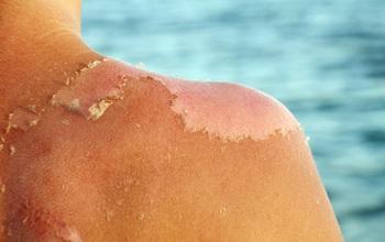 """Nắng nóng mùa hè: Chuyên gia cảnh báo da bị """"cháy nắng"""" có thể gây ung thư da"""
