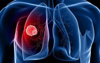 Ung thư phế quản là gì?