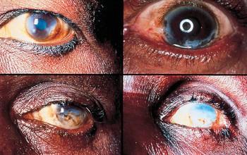 Sốc: 10 bệnh ký sinh trùng ở mắt có thể gây mù vĩnh viễn
