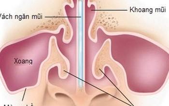Bệnh vẹo vách ngăn mũi là gì? dấu hiệu nhận biết và cách điều trị vẹo vách ngăn mũi