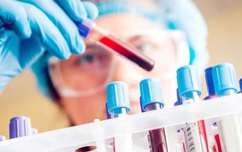 Điều trị bệnh dịch hạch, đề phòng biến chứng