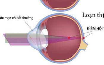 Tìm hiểu về loạn thị và cách chữa loạn thị