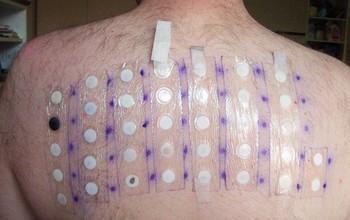 Một số xét nghiệm chẩn đoán viêm da tiếp xúc