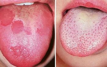 Nhận biết viêm lưỡi bản đồ để tránh nhầm lẫn với căn bệnh ung thư lưỡi