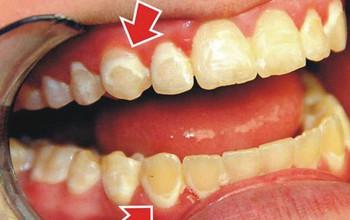 Bạn có biết bệnh viêm nha chu là gì?