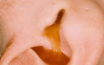 Cảnh báo bệnh viêm tai ngoài có thể lan đến viêm tai giữa và gây suy giảm thính lực