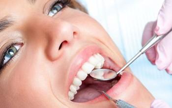 Vôi răng là gì? Ảnh hưởng của vôi răng đến sức khỏe răng miệng