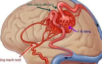 Bệnh dị dạng mạch máu não có thể gây đột tử không?
