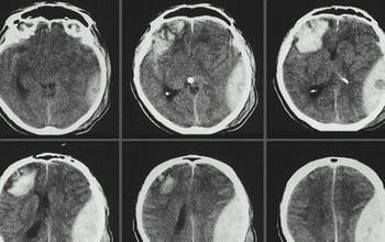 Tìm hiểu về bệnh chấn thương sọ não nhẹ