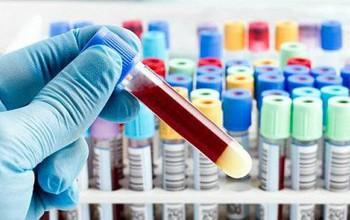 Tìm hiểu về phương pháp xét nghiệm Clo máu
