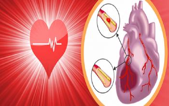 Bệnh thiếu máu cơ tim là gì? Dấu hiệu, nguyên nhân và cách điều trị