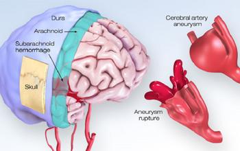 Phình mạch máu não là gì? Cần phát hiện sớm để tránh tử vong