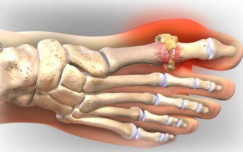 Bệnh giả Gout là gì và những điều cần biết về bệnh giả Gout