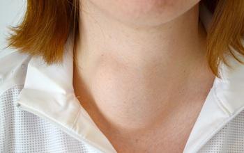 Bướu cổ là gì và những kiến thức tổng quan về bệnh bướu cổ