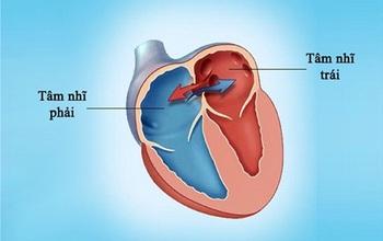 Bệnh tim bẩm sinh là gì? Tìm hiểu chung về bệnh tim bẩm sinh