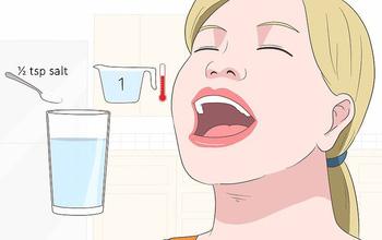 Những sai lầm khi điều trị viêm họng nhiều người mắc phải