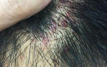 Mức độ nguy hiểm của biến chứng sẹo lồi do viêm nang lông và cách xử lý