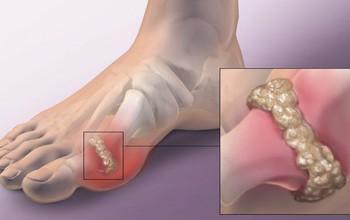 Tìm hiểu về bệnh gout mãn tính
